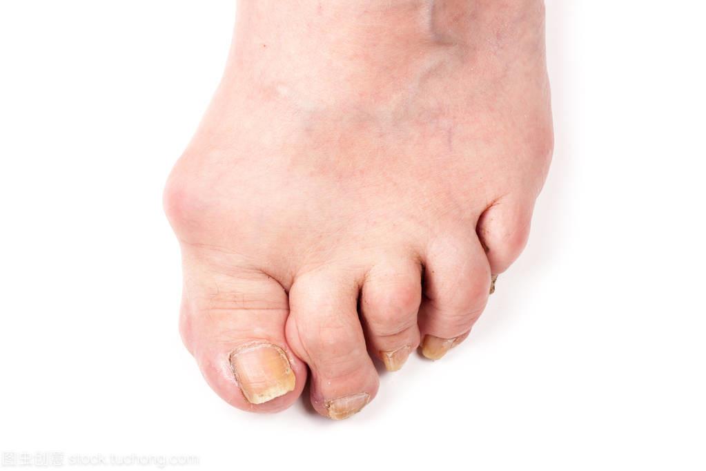 南阳专业治疗痛风医院,脚跟痛是痛风吗 痛风的症状是什么