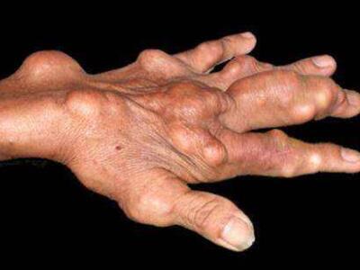 痛风病急性发作应及时治疗